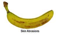banana_skin_abrasions